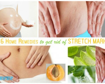 best-way-to-get-rid-of-stretch-marks